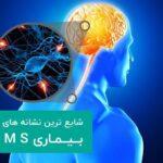 توصیه متخصص مغز و اعصابدر درمان ام اس