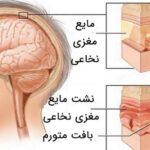 علائم و درمان بیماری مننژیت