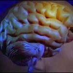 چه عواملی باعث سکته مغزی می شود؟