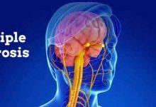 آیا کرونا موجب تخریب مغز می شود؟