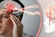 اختلال مغز در افراد مبتلا به کرونا ویروس!