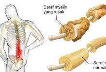 علائم و درمان سندروم گیلن باره