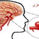 درباره آنوریسم مغزی چه می دانید؟