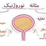 درمان مثانه عصبی یا نوروژنیک