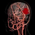 آیا سکته مغزی باعث زوال عقل می شود؟